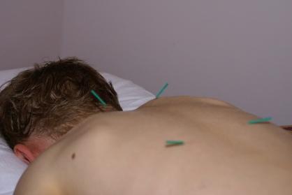 Tiny Pediatric Needles